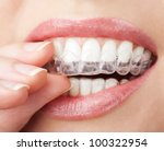 teeth with whitening tray | Shutterstock . vector #100322954