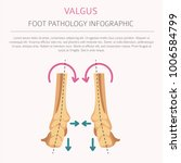 foot deformation as medical... | Shutterstock .eps vector #1006584799