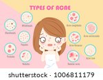 girl with types of acne on the... | Shutterstock .eps vector #1006811179