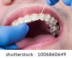 dentist making hygiene teeth... | Shutterstock . vector #1006860649