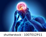3d illustration of headache... | Shutterstock . vector #1007012911
