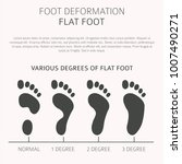 foot deformation as medical... | Shutterstock .eps vector #1007490271