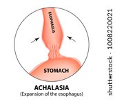 achalasia of the esophagus.... | Shutterstock .eps vector #1008220021