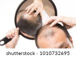 mature man with thin hair  hair ... | Shutterstock . vector #1010732695