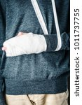 Small photo of plastered arm, a broken arm at the teenager. on a white background
