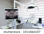 X Ray Footage Of Patients Teeth ...
