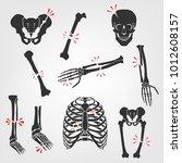 bones fractures icons. flat... | Shutterstock .eps vector #1012608157
