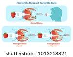 far sightedness and near... | Shutterstock .eps vector #1013258821
