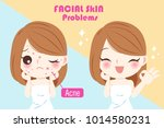 woman with acne problem before... | Shutterstock .eps vector #1014580231