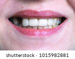 mouth with four prosthetic... | Shutterstock . vector #1015982881