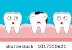 caries tooth decay disease ... | Shutterstock .eps vector #1017550621