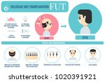 male hair loss fut medical... | Shutterstock .eps vector #1020391921