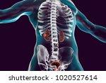 cancer of kidney  3d... | Shutterstock . vector #1020527614