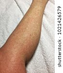 Small photo of Cold Urticaria allergic on leg background