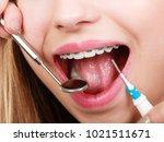 dental health care  stomatology ... | Shutterstock . vector #1021511671