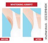 dark   whitening armpit before...   Shutterstock .eps vector #1023398404