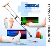 surgical traumatology realistic ... | Shutterstock .eps vector #1023732781