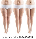 woman legs before and after...   Shutterstock . vector #1024396954