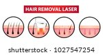 hair removal laser icon step... | Shutterstock .eps vector #1027547254