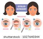 eyelid surgery procedure before ... | Shutterstock .eps vector #1027640344