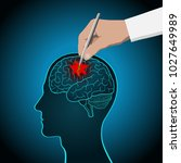 the concept of brain recovery ... | Shutterstock .eps vector #1027649989