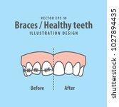 braces healthy teeth... | Shutterstock .eps vector #1027894435