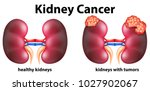 diagram showing kidney cancer... | Shutterstock .eps vector #1027902067