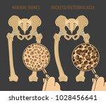normal bones versus rickets and ... | Shutterstock .eps vector #1028456641