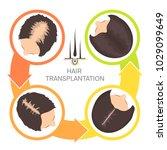 hair transplantation surgery 4... | Shutterstock .eps vector #1029099649