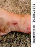 Small photo of A scar is an area of fibrous tissue that replaces normal skin after an injury. Scars result from the biological process of wound repair in the skin, as well as in other organs and tissues of the body.