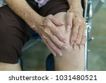 elderly woman with a knee pain... | Shutterstock . vector #1031480521