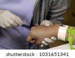 hand of nurse put intravenous...   Shutterstock . vector #1031651341