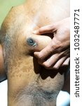 Small photo of Extremely rare Right Breast Cancer in Male Patient with excision biopsy scar.