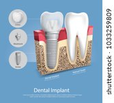human teeth and dental implant...   Shutterstock .eps vector #1033259809