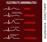 electrolyte abnormalities ecg... | Shutterstock .eps vector #1036771849