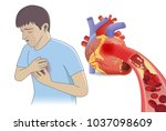 man have chest pain from blood... | Shutterstock .eps vector #1037098609