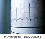 sinus heart rhythm on... | Shutterstock . vector #1037200351