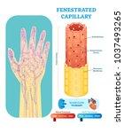 fenestrated capillary... | Shutterstock .eps vector #1037493265