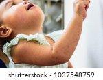 detail of left arm skin on... | Shutterstock . vector #1037548759