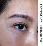 sensitive skin problem shown on ...   Shutterstock . vector #1041031081