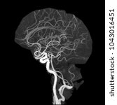Small photo of Lateral view of Computed Tomography Angiography(CTA) of brain, A method of 3D data Maximum Intensity Projection(MIP) of the Circle of Willies include anterior and posterior circulation.