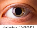 Small photo of A young woman's eye with dilated pupil - close up