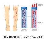 medical diagram of deep vein... | Shutterstock .eps vector #1047717955