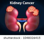 diagram showing kidney cancer... | Shutterstock .eps vector #1048326415