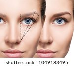 female face before and after... | Shutterstock . vector #1049183495