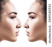 female nose before and after... | Shutterstock . vector #1049183531
