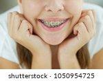 girl with braces | Shutterstock . vector #1050954725