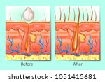 hair growth stimulants before... | Shutterstock .eps vector #1051415681