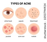 infographics by types of acne | Shutterstock .eps vector #1053794924