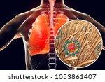 measles viruses in human... | Shutterstock . vector #1053861407